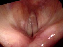 Hemorrhagic vocal cord polyp