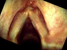 Hemorrhagic vocal cord polyp two weeks after excision
