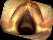Hemorrhagic vocal cord polyp one month after excision