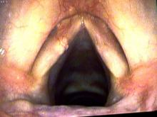 cyst within the left vocal cord, beneath the mucosa