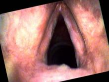 Vocal cord leukoplakia in a smoker with false color imaging