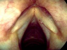 The hemorrhagic vocal cord polyp has either shrunk or fallen off and a new polyp formed