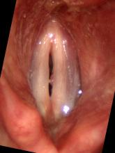 Stroboscopy with polyp impairing closure