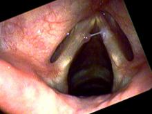 Hemorrhagic vocal cord polyp on the left side with secretions sticking on the right