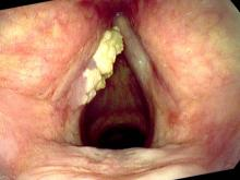 Exophytic leukoplakia of the left vocal cord with filtered lighting