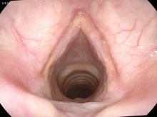 cutaneous vocal cord sarcoid