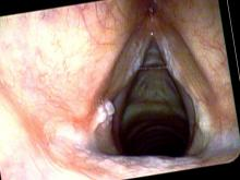 Central vocal cord leukoplakia and left vocal process granuloma