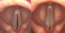 Left: the vocal cords are vibrating at a low pitch. Right: at a high pitch the CT muscle has stretched the vocal cords.