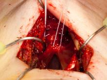 Shortened vocal cords sutured together
